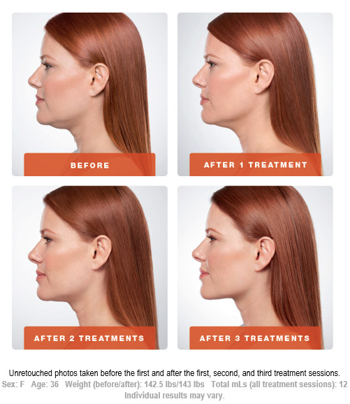 Before After Kybella Treatment Session