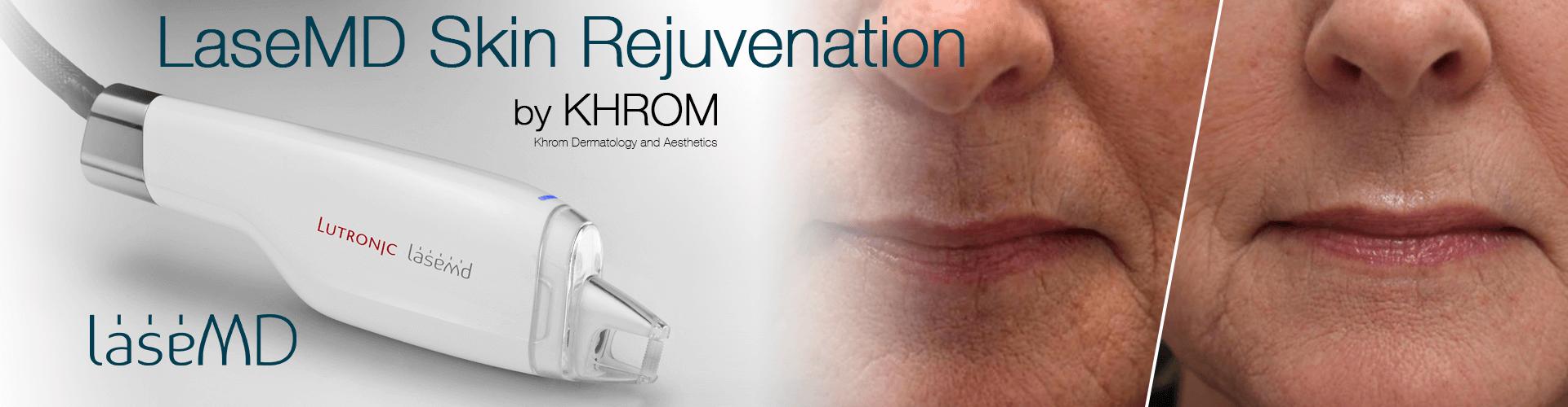 LaseMD Skin Rejuvenation By Khrom