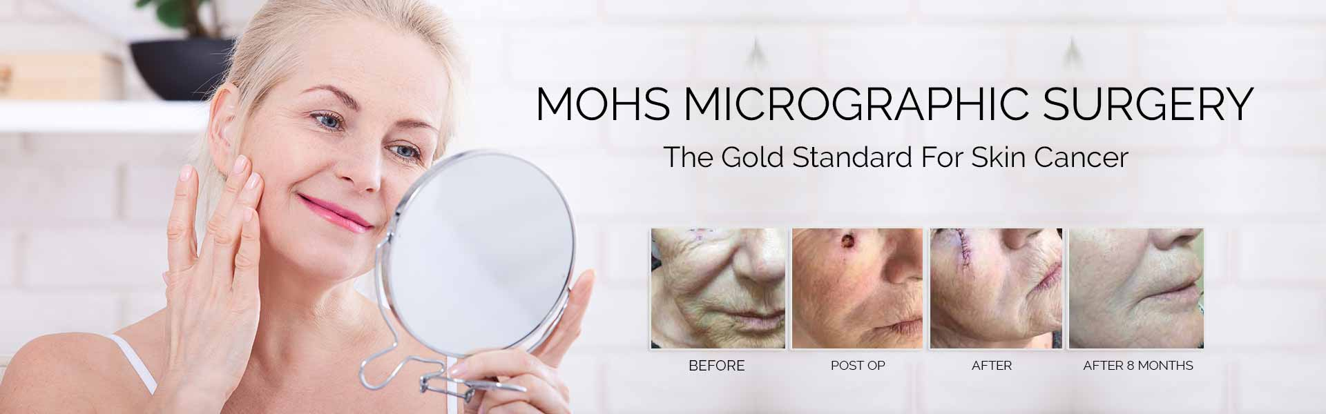 Mohs Surgery By Khrom