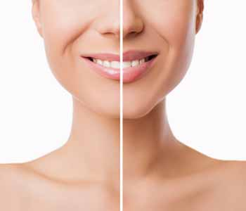 At Khrom Dermatology and Aesthetics, professionals offer patients in and around the Sheepshead Bay, NY area solutions for facial enhancement
