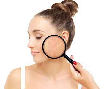 Dr. Tatiana Khrom and her professional staff can assist men and women who have been diagnosed with rosacea on ways to keep the redness and flushing under control.