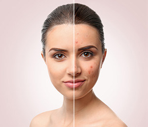 Before and after image of a girl with acne