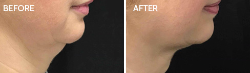 Coolsculpting Before after05
