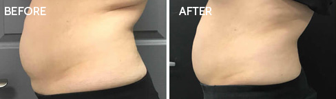 Coolsculpting Before after 06
