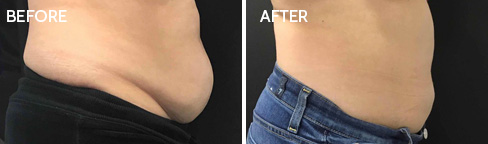 Coolsculpting Before after 08