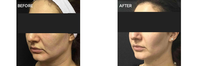 Actual Patient Before and After Images 3