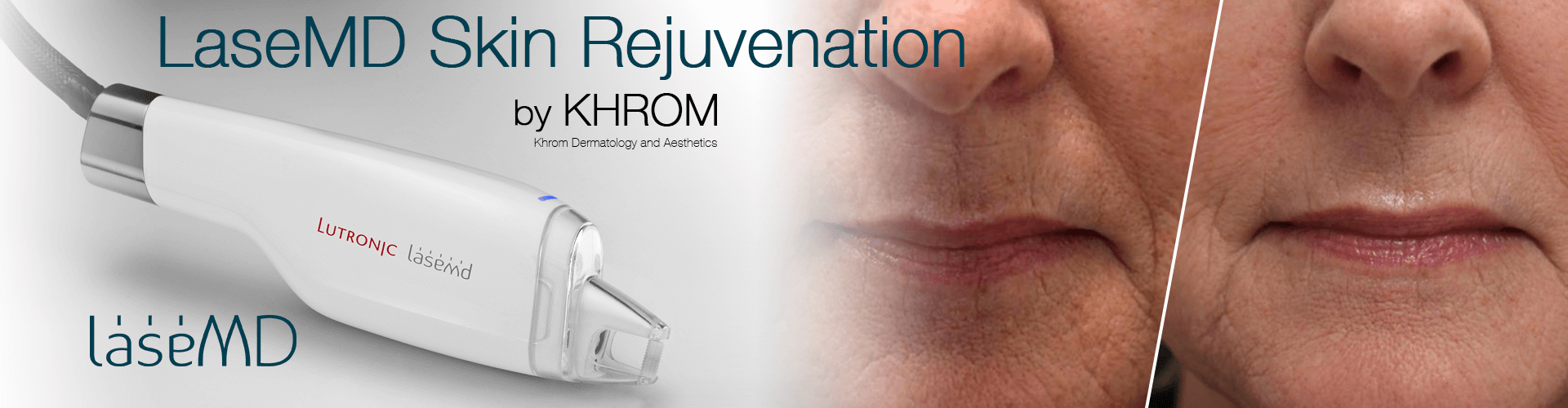 LaseMD Skin Rejuvenation By Khrom