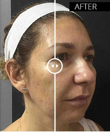 Redefining facial contours before and after
