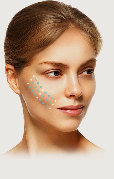 Redefining facial contours
