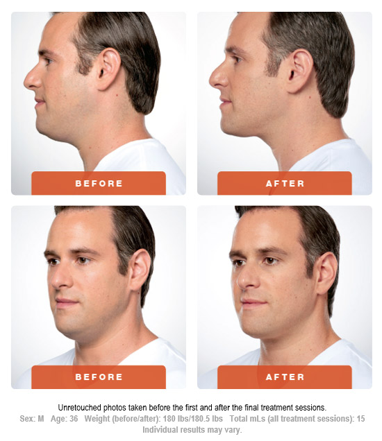 How does KYBELLA® work , Before After