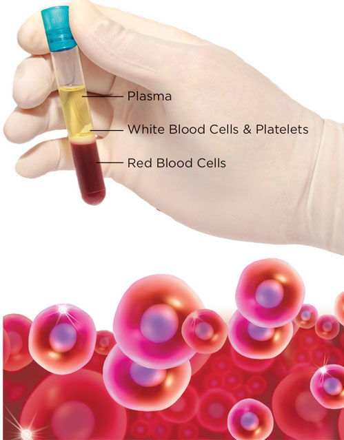 Platelet Rich Plasma (PRP) for hair loss and facial rejuvenation in Brooklyn NY
