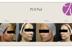 Chemical Peels and Microdermabrasion Before After Case 01