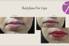 Lip Treatment Before After Case 03