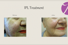 Redness and Rosacea Treatment Case 04