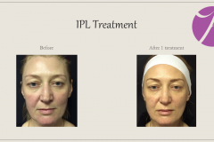 Redness and Rosacea Treatment Before After Case 03