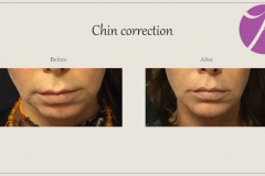 Cheeks, Nasolabial folds and Chin Treatment Before After Case 08