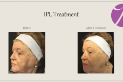 Pigmentation Treatment Before After Case 03