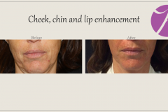 Cheeks, Nasolabial folds and Chin Treatment Before After Case 07