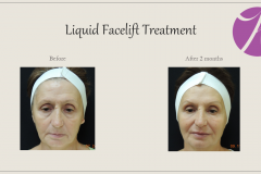 Sculptra for Rejuvenation Before After Case 01