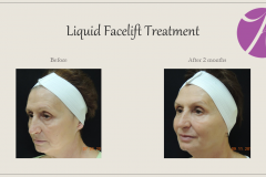 Sculptra for Rejuvenation Before After Case 02