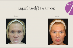 Sculptra for Rejuvenation Before After Case 03