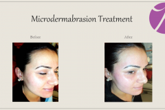 Chemical Peels and Microdermabrasion Before After Case 10