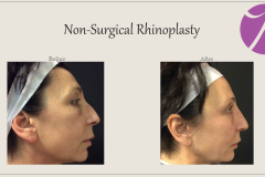 Non-Surgical Rhinoplasty Before After Case 03