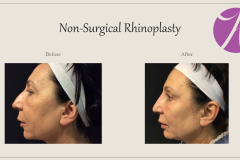 Non-Surgical Rhinoplasty Before After Case 02