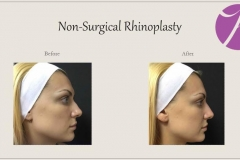 Non-Surgical Rhinoplasty Before After Case 04