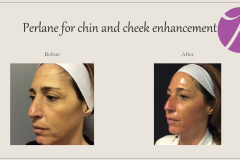 Cheeks, Nasolabial folds and Chin Treatment Before After Case 04