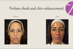 Cheeks, Nasolabial folds and Chin Treatment Before After Case 03