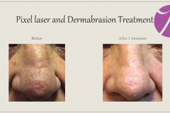 Skin Resurfacing and Rejuvenation Before After Case 12