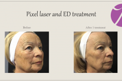 Skin Resurfacing and Rejuvenation Before After Case 11