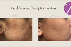 Acne Scars Treatment Before After Case 02