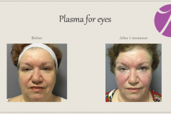 Skin Resurfacing and Rejuvenation Before After Case 03