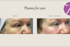 Skin Resurfacing and Rejuvenation Before After Case 02