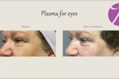 Skin Resurfacing and Rejuvenation Before After Case 01