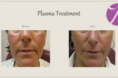 Skin Resurfacing and Rejuvenation Before After Case 07
