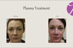 Skin Resurfacing and Rejuvenation Before After Case 05