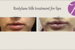 Lip Treatment Before After Case 01