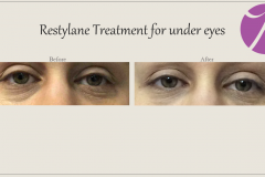 Eye Treatment Before After Case 04