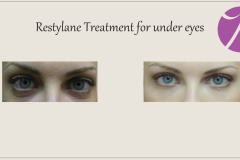 Eye Treatment Before After Case 02