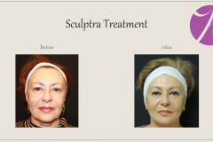 Sculptra for Rejuvenation Before After Case 12