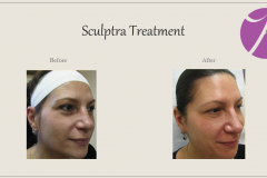 Sculptra for Rejuvenation Before After Case 11