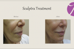 Sculptra for Rejuvenation Before After Case 10