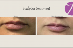 Sculptra for Rejuvenation Before After Case 09