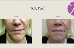 Chemical Peels and Microdermabrasion Before After Case 08