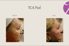 Chemical Peels and Microdermabrasion Before After Case 07