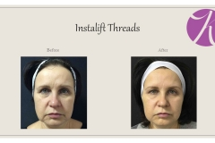 Facial Threads Before After Case 01