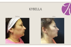 KYBELLA Fat Removal Before After Case 01